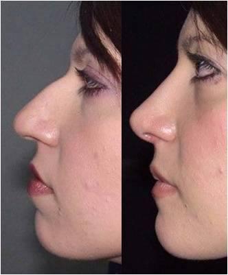 Cirugía de nariz en ciudad de mexico.